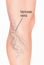medial view of leg with varicose veins SOURCE: 1) Ruckley, C. Vaughan (1983). Color Atlas of Surgery for Varicose Veins. Page 11, Figures 2a and 2b.
