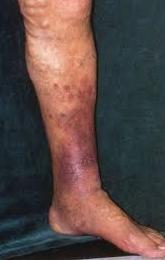 Brown discolored ankle