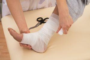 Unna boot for venous ulcer