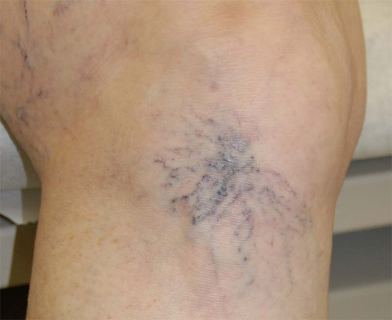 Spider vein before sclerotherapy