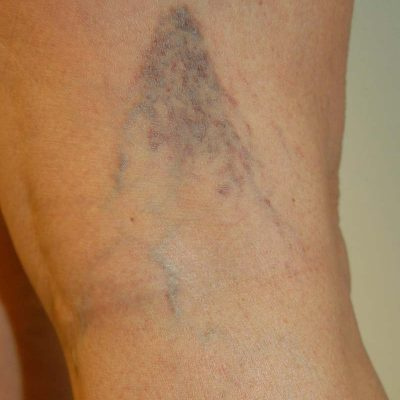 Painful Varicose Veins During Pregnancy.