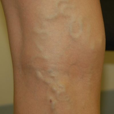 Three Steps to Treat Varicose Veins in 2019