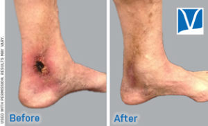 stasis dermatitis before and after