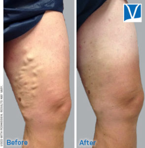 endovenous ablation of varicose veins