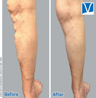 Closurefast vein ablation before and after