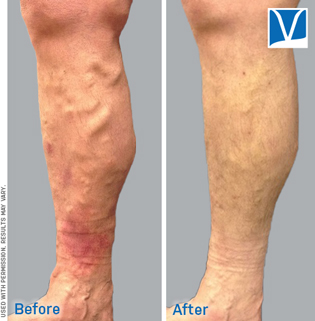 varicose vein sclerotherapy before and after