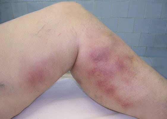 example of superficial vein phlebitis in leg