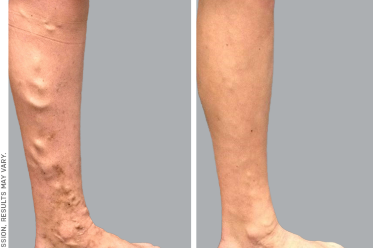 Vein ablation before and after