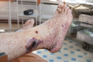 Leg wound and ankle discoloration